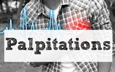 Palpitations