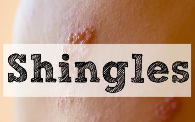 Shingles