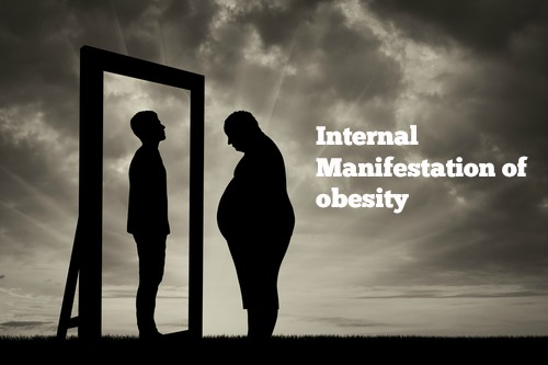 The Brain has been taken prisoner – Obesity Part III: The body has been taken prisoner