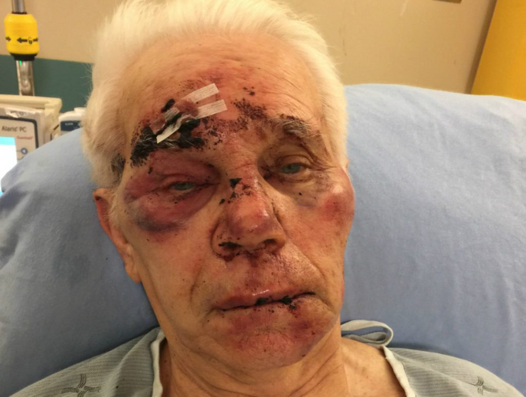 Family reaches out to carp after father assaulted in long term care