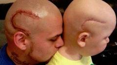 Matching Head Tattoo