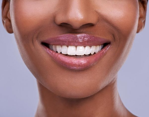 Photo of a model smiling