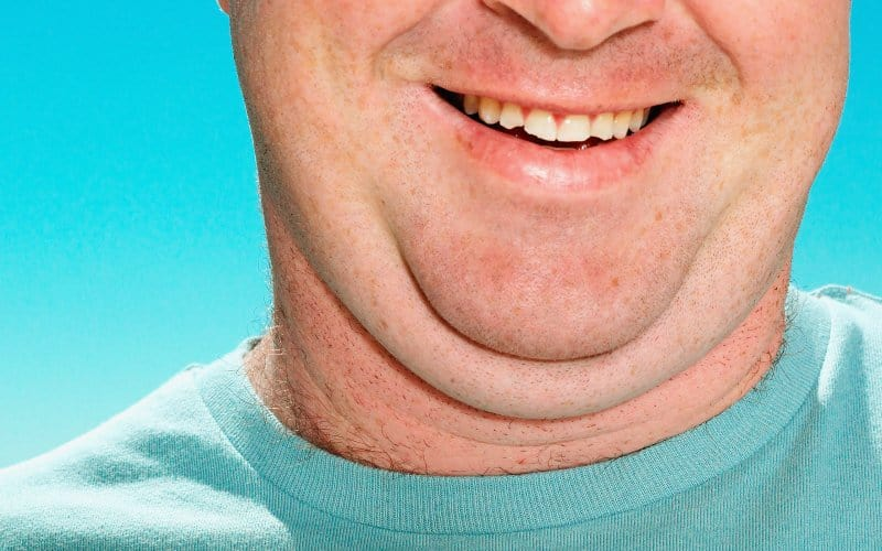 The FDA Approved a Drug That Can Dissolve Your Double Chin