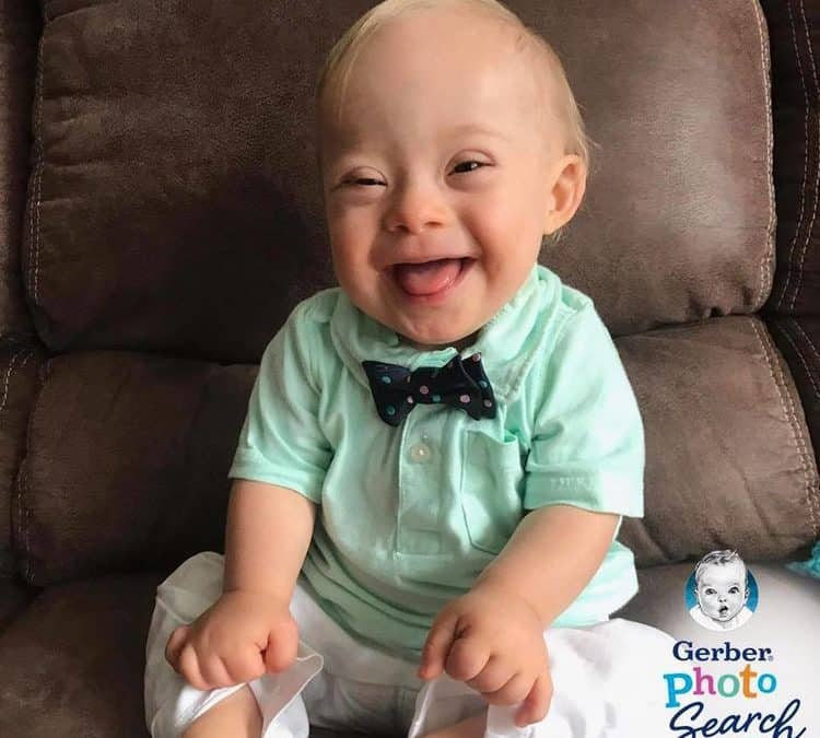 First baby with Down syndrome wins Gerber baby contest  (Look at that Smile)