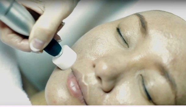 Collagen Induction Facial