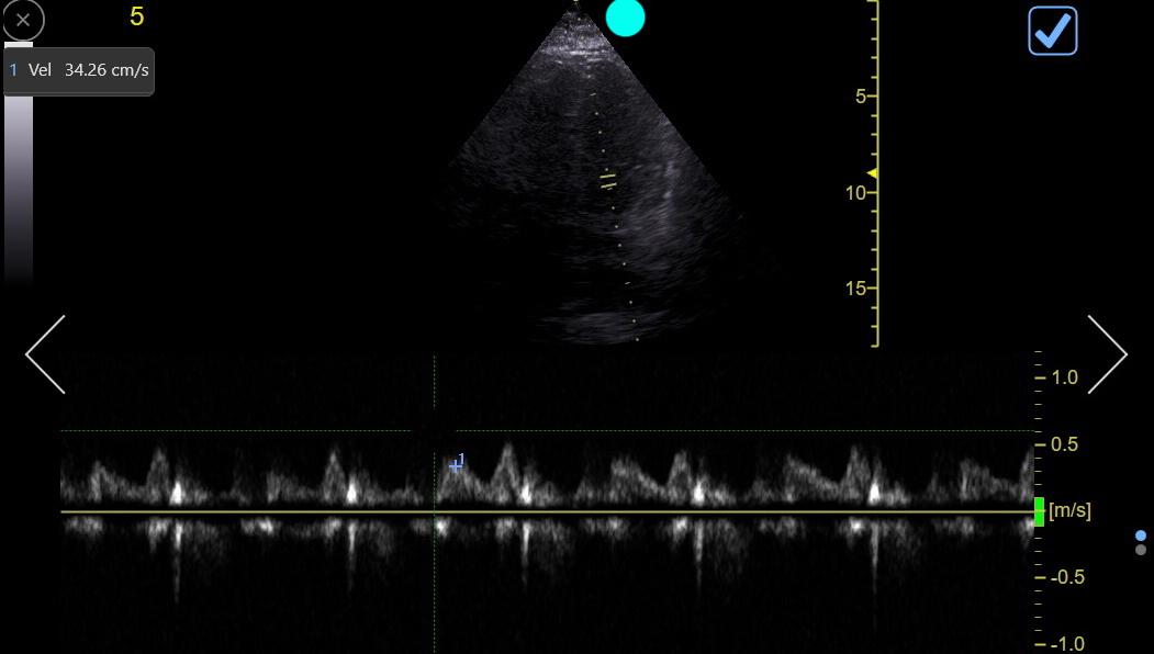 Sensory distribution of Serratus Block