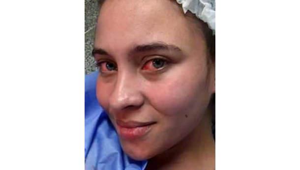 Cirurgia para remoção de pedra na vesícula
