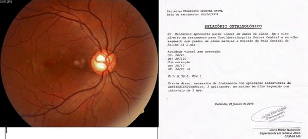 Oclusão de veia central do olho