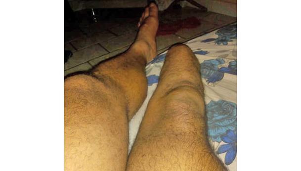 Prótese pra perna