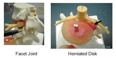 facet joint herniated disk