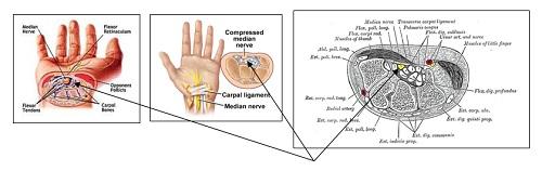 illustration of wrist anatomy