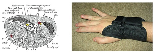 illustrated diagram of inside wrist next to picture of a wrist in a black brace