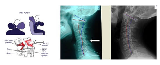 flexion-extension cervical spine X-ray