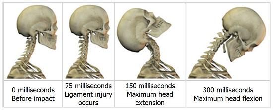 skeleton illustration demonstrating what happens during whiplash