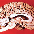 Thumb_140_brain_courtesy