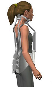 Information about Scoliosis brace, Milwaukee brace and