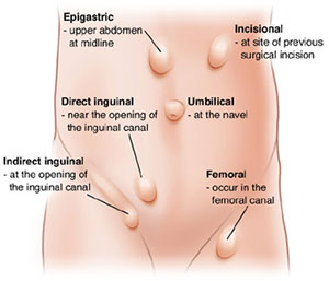 Everything About Hernias Symptoms Causes Treatments Types And More