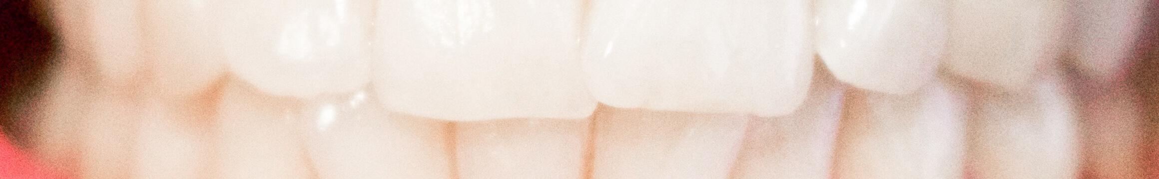 Dental 03