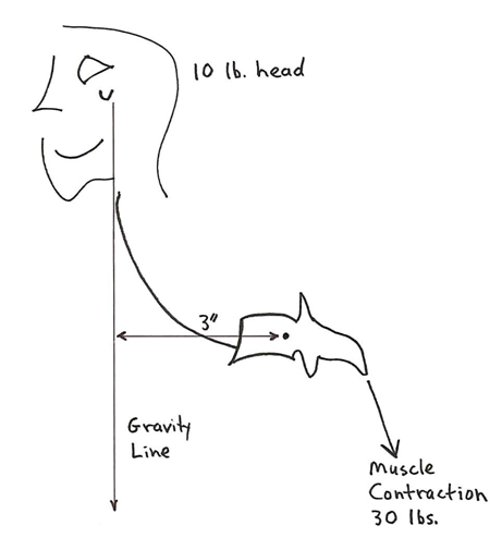 Rene Cailliet, MD, nicely explains these concepts in his 1996 book Soft Tissue Pain and Disability (6). Pertaining to the loss of cervical lordosis causing a forward head posture, Dr. Cailliet notes that a 10 lb. head with a displaced center of gravity forward by 3 inches would required counter balancing muscle contraction on the opposite side of the fulcrum (the vertebrae) by 30 lbs. (10 lbs. X 3 inches):