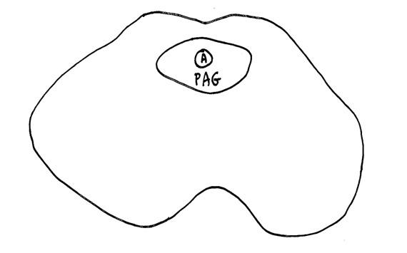 Mesencephalon Periaqueductal Gray Matter Axial View