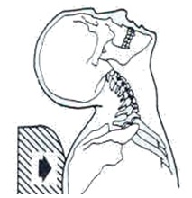 Neck Hyperextension As Trunk Is Pushed Under Head