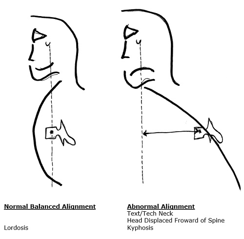 forward head motion moves center of gravity forward of the spine