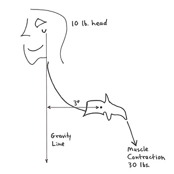 If the weight of the head is 10 pounds and the head is displaced forward by 3 inches, the load on the spinal fulcrum (the vertebrae) is 30 pounds (10 pounds X 3 inches). The required counter balancing muscle contraction on the opposite side of the fulcrum (the vertebrae) would also be 30 pounds. The net total increased fulcrum (spinal vertebral) load is 60 pounds. This exposes the spinal column (vertebrae) to chronic wear and tear damage. The common lexicon for this wear and tear damage is degenerative joint disease, or more simply, spinal arthritis.