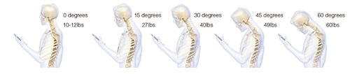 head bent 60 degrees places 60 lbs of force on cervical spine