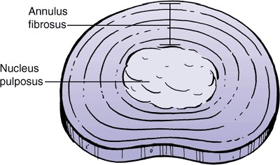 The intervertebral disc has two components. The center of the disc is called the Nucleus Pulposus, or simply nucleus. The nucleus is mostly water and functions as a ball bearing, allowing the vertebrae to bend and twist.  The nucleus is surrounded by tough outer fibers called the Annulus Fibrosis, or simply annulus.
