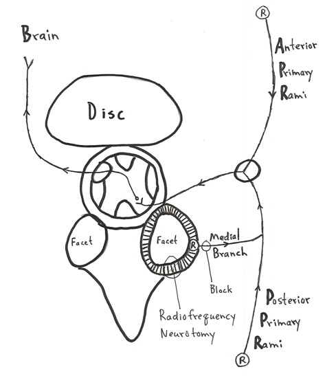 "The facet joint has nociceptors ""R"" which are connected to the brain through the medial branches of the posterior primary rami."
