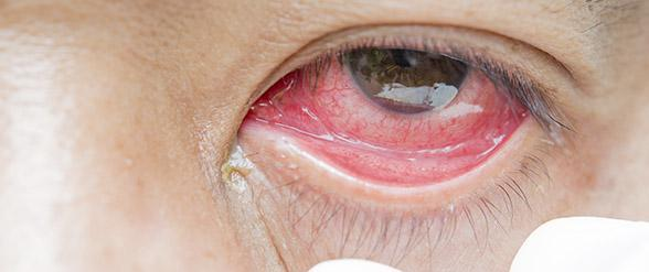 eye infection symptoms and treatment think about your eyes