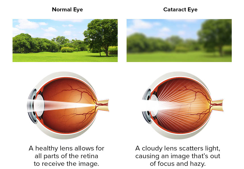 Cataracts | Cataract Symptoms | Think About Your Eyes