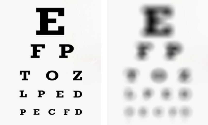 Legally Blind What Is Legally Blind Think About Your Eyes