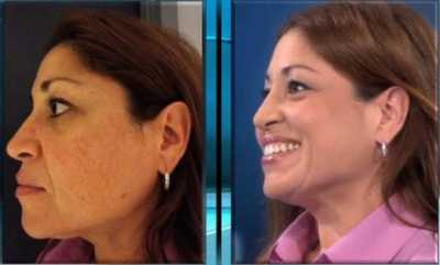 BB Cream Skin test on Dr. OZ show