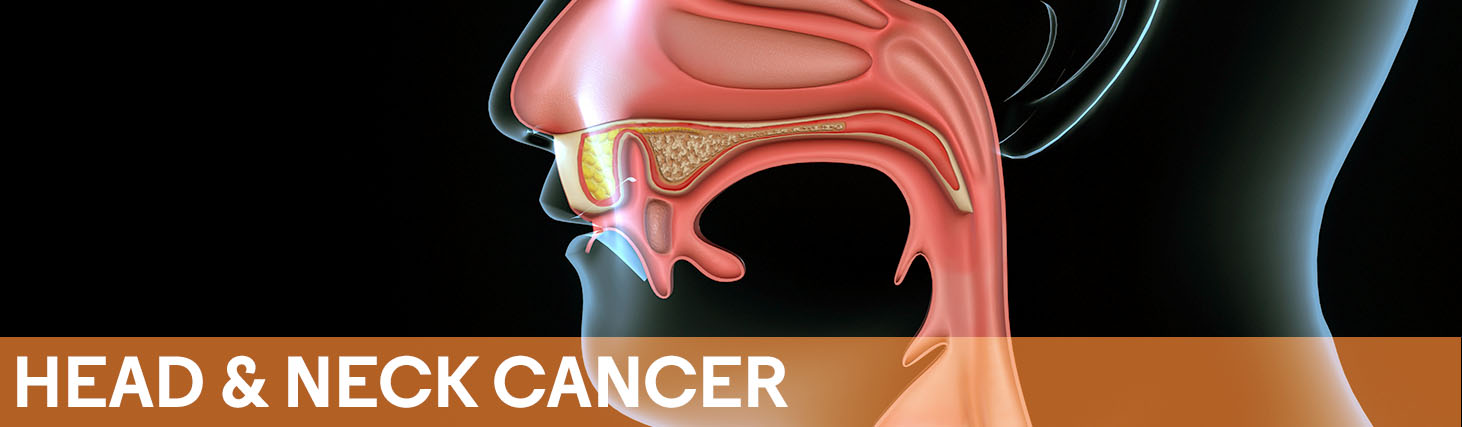 Head & Neck Cancer | Journal Of Clinical Pathways