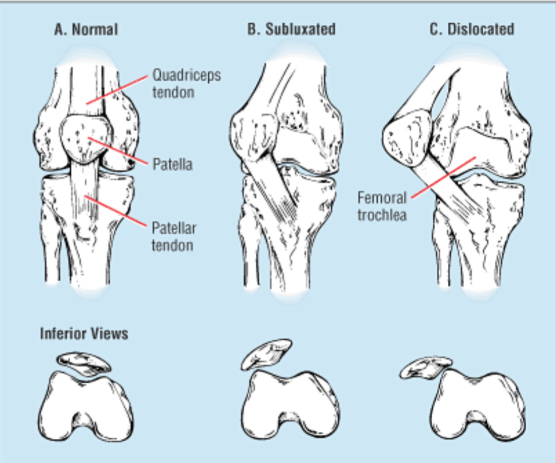 Reducing patella dislocations in the field ems world ccuart Choice Image