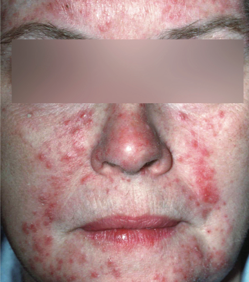 Treating Rosacea Today The Dermatologist