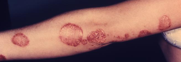 Psoriasis Therapy Improves Joint And Skin Symptoms Of Psoriatic Arthritis The Dermatologist