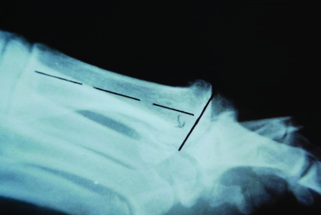 "This lateral radiograph demonstrates the ""snowplow effect"" of the first metatarsophalangeal joint."