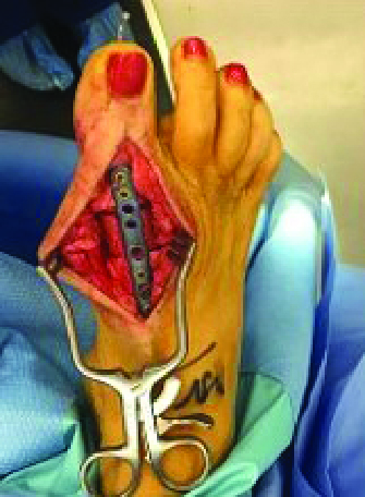 Here one can see revision of total joint arthroplasty using interpositional block allograft