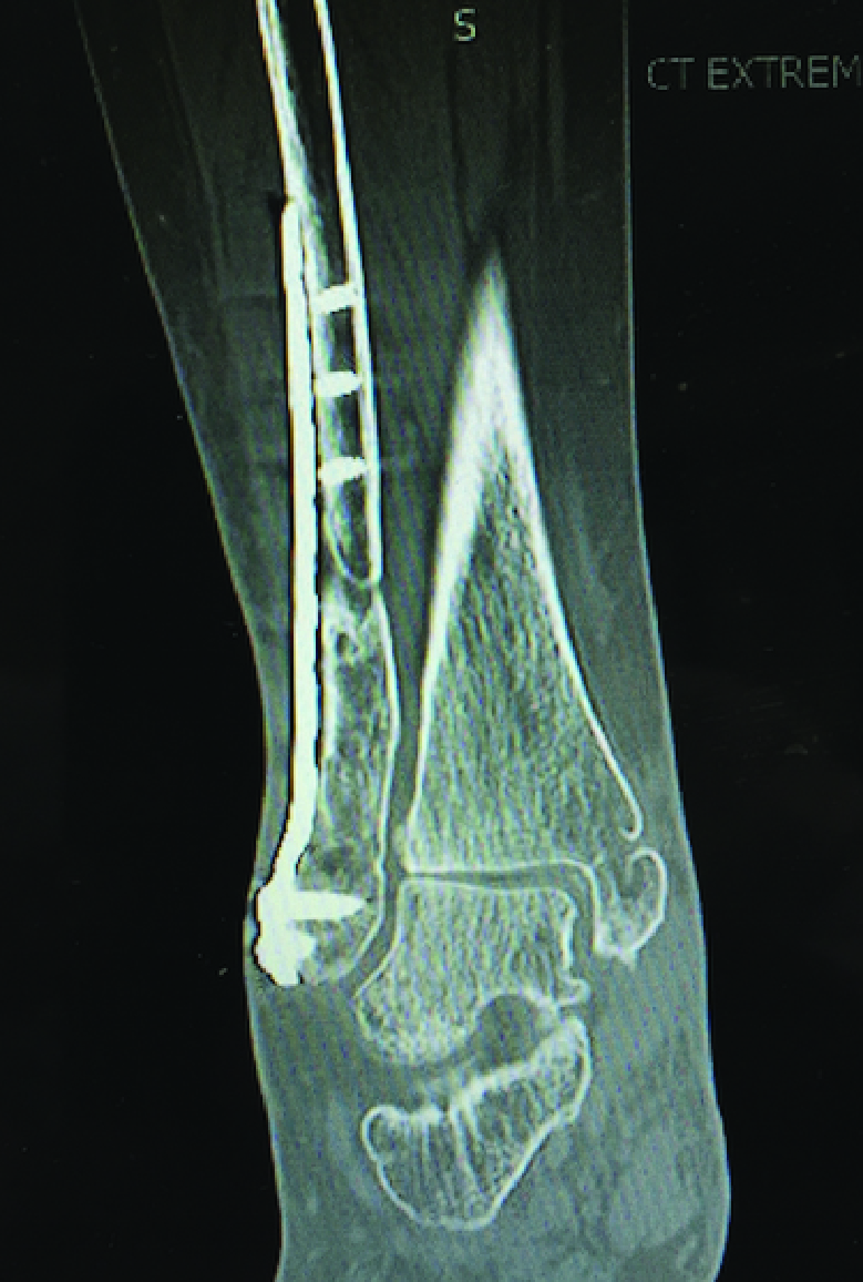 A 55-year-old female sustained a left trimalleolar ankle fracture. Radiographs demonstrated a malunited distal fibula fracture, non-uniform joint space narrowing and hardware (plate and screws) along the distal fibula.