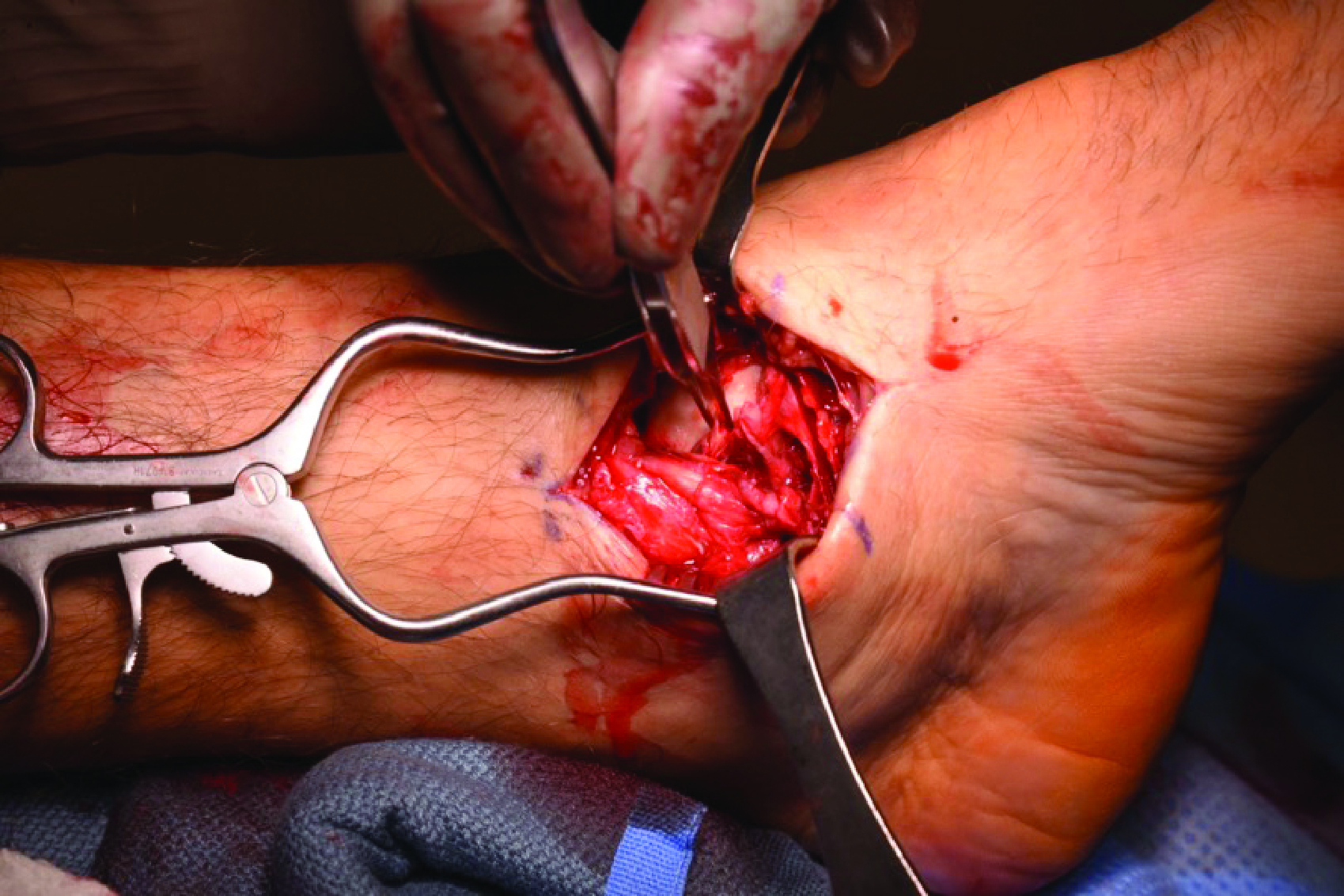 Deltoid ligament avulsion or rupture is not uncommon in traumatic cases.