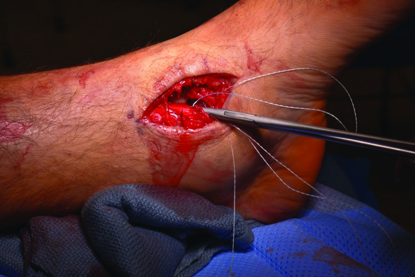 With the ankle in a neutral position, pass the sutures through the ligaments and repair them.