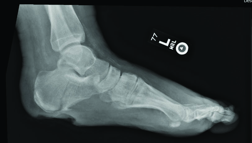 This lateral radiograph depicts a pathologic fracture of the calcaneus with intra-articular extension in a 55-year-old patient with diabetes and end-stage renal disease, who also presented with a chronic, full-thickness wound.
