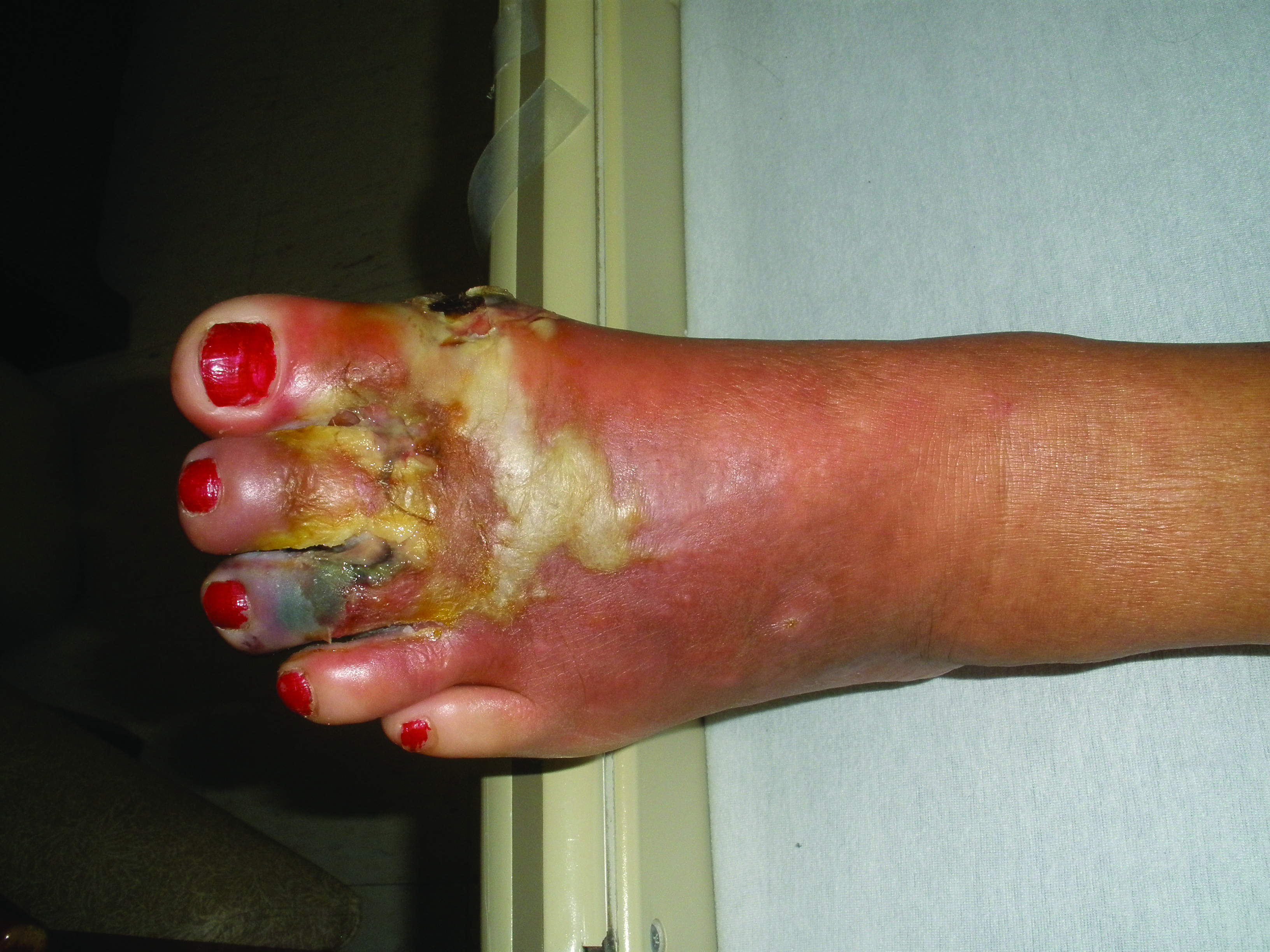 Here is a diabetic foot with a necrotizing infection. All employees of podiatric facilities with a role in infection prevention and control should receive periodic training in infection control and prevention to ensure that they understand and follow the policies and procedures of the facility.