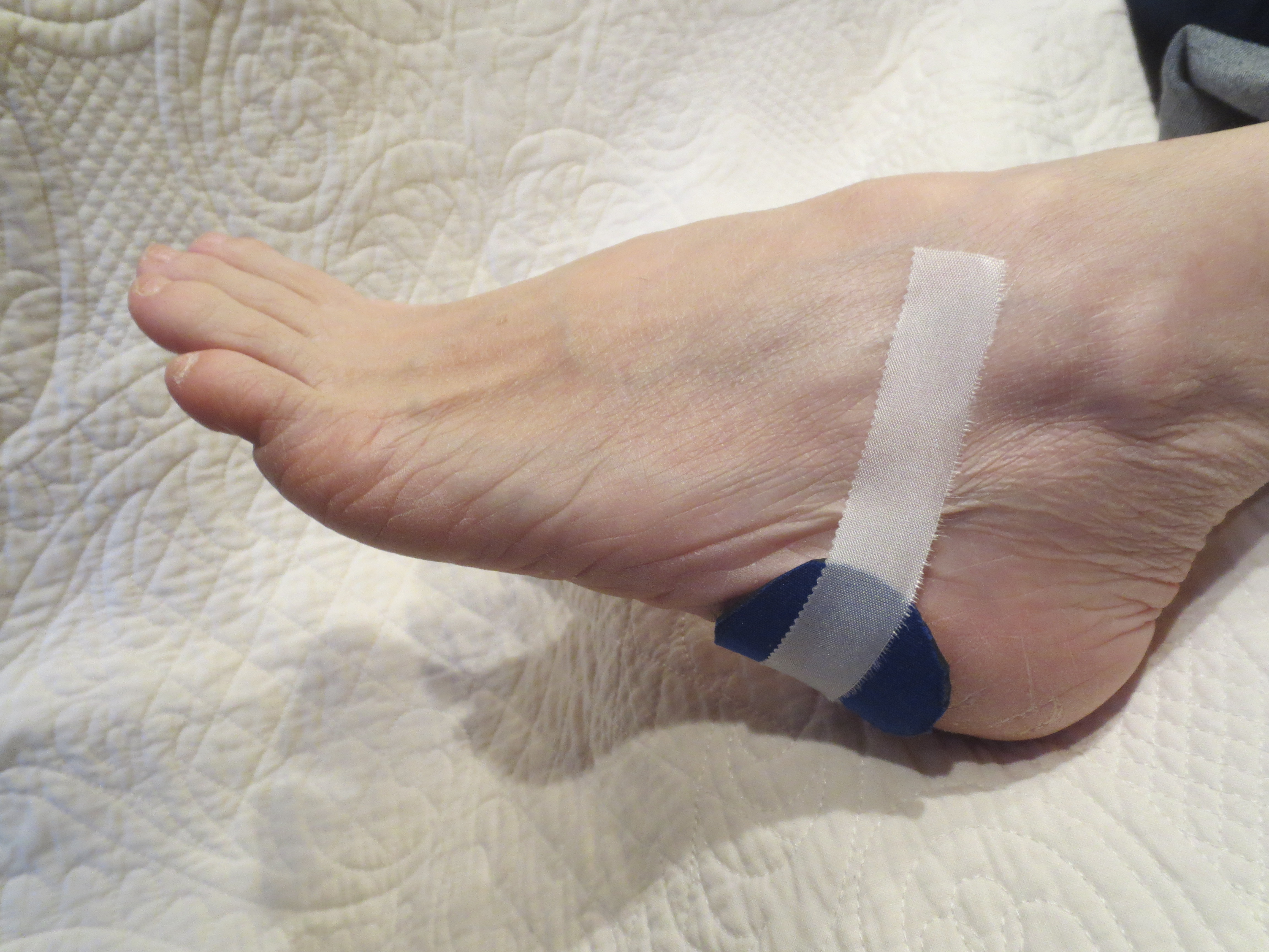 This photo shows the study pronating device taped to the lateral aspect.