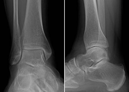A 62-year-old presented with chronic right ankle pain. Here is postoperative imaging following ankle arthroscopy with curettage of a talar cyst, autograft of a talar defect, and allograft resurfacing.