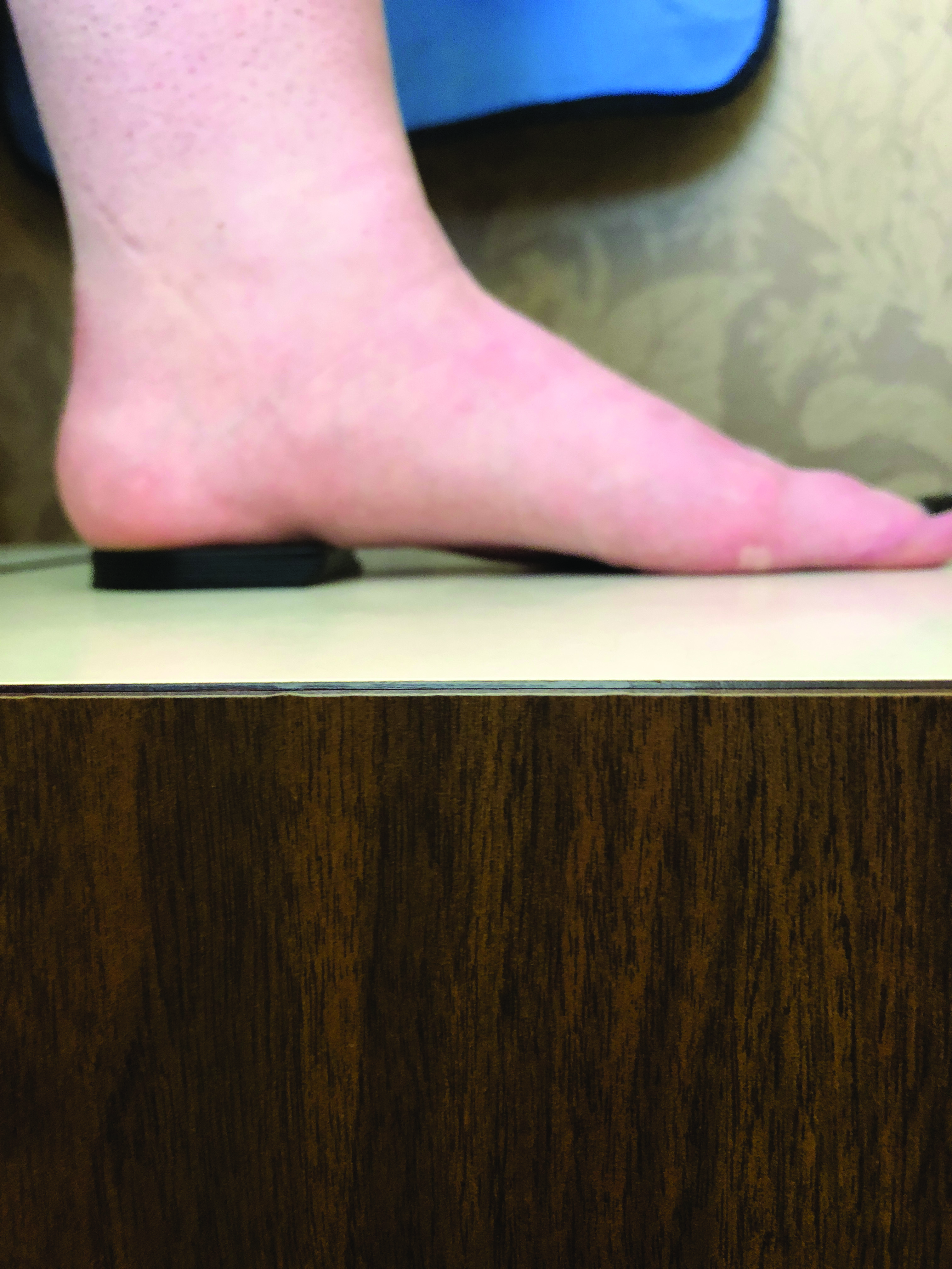 Heel Elevation In The Shoe: What The