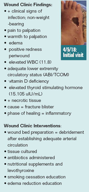 Wound Clinic Case Study: Fracture Blister
