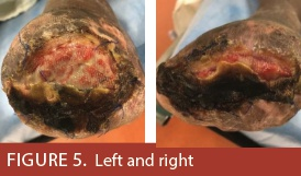 Preserving Tissue & Limb Function: An Unusual Podiatric Wound | Volume 12 Issue 12 - December 2018